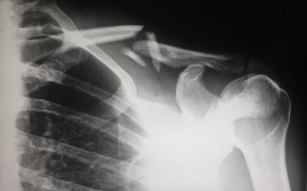 X-ray from slip and fall injury